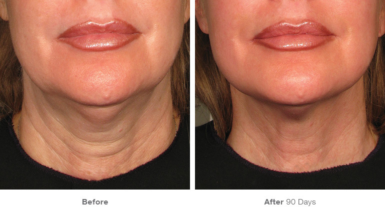 Before & After Ultherapy Maitland & Orlando, FL